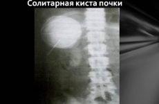Солітарна кіста лівої або правої нирки: код за МКХ-10, причини, симптоми, лікування