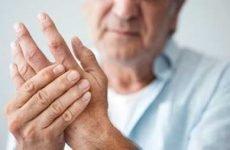 Супутні захворювання ревматоїдного артриту