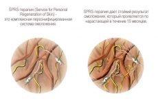 SPRS-терапія: показання, протипоказання, техніка, ускладнення, побічні ефекти, відгуки, ціна