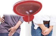 Странгурия у чоловіків і жінок: причини, як виявляється, лікування народними засобами і ліками
