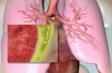 Свистяче дихання у грудині у немовляти, дитини або дорослого