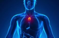 Тимома вилочкової залози: стадії, симптоми, фото, діагностика і лікування пухлини