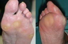 Тофуси при подагрі на ногах і пальцях рук: як виглядають, фото, лікування, як видалити народними засобами