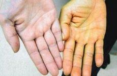 Токсичний гепатит: симптоми, лікування, дієта