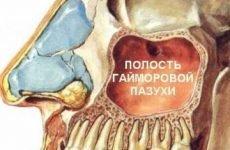 Видалення кісти гайморової пазухи: ендоскопічна операція, відео