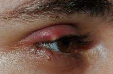Видалення ліпом на обличчі та голові: лазером і хірургічним шляхом, ціна, відео з операцій, відгуки