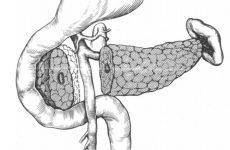 Видалення підшлункової залози: наслідки та життя після