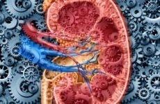 Уросепсис: причини, форми, діагностика, лікування, прогноз, профілактика