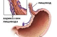 Варикозне розширення вен стравоходу: ступеня, класифікація, симптоми, лікування
