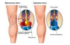 Венотоніки для мозкового кровообігу: список препаратів, інструкція із застосування, відгуки