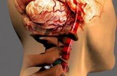 Вертебро-базилярна недостатність на тлі шийного остеохондрозу: МКБ-10, симптоми, лікування
