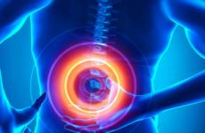 Види та класифікація міжхребцевих гриж хребта шийного, грудного, поперекового відділу у чоловіків і жінок