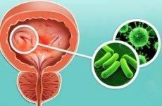 Вірусний цистит у дітей, чоловіків і жінок: причини, симптоми, діагностика, лікування