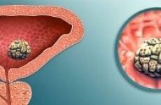Застій сечі в сечовому міхурі у дітей, чоловіків і жінок: причини, симптоми, діагностика, лікування