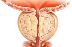 Застійний простатит у чоловіків: причини, симптоми, діагностика, лікування