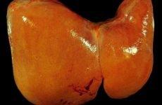 Жировий гепатоз печінки: симптоми, медикаментозне лікування і народними засобами, дієта