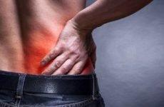 Печіння в спині, в області лопаток, ззаду, збоку ліворуч або праворуч, під ребрами, внизу