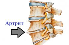 Артрит хребта: симптоми та варіанти лікування