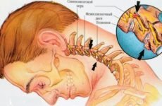 Артроз хребта: причини, симптоми, діагностика і лікування