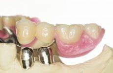 Чим відрізняється нижній знімний зубний протез від верхнього?