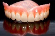 Що з себе представляють зубні протези на присосках?