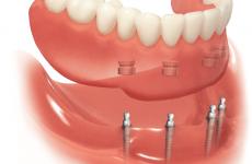 Що являють собою умовно-знімні зубні протези?