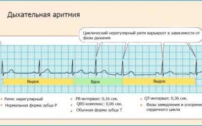 Що таке дихальна аритмія і яку небезпеку вона становить для здоров'я?