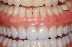 Що таке художня реставрація зубів і в чому її особливість?