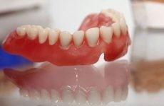 Що таке поліуретанові знімні зубні протези?