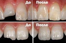 Що таке реставрація зубів?