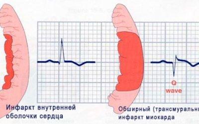 Що таке трансмуральний інфаркт міокарда і чим небезпечна його гостра форма?