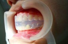 Що таке трейнери для зубів і навіщо вони потрібні?
