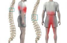 Деформуючий спондильоз: причини виникнення і лікування