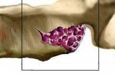 Гемангіома шийного відділу хребта: особливості та лікування