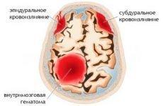 Геморагічний інсульт: види, причини, клінічна картина та особливості лікування
