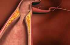 Гігантоклітинним скроневий артеріїт або хвороба Хортона: причини, ознаки і тактика лікування