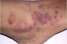 Гранулематоз Вегенера: симптоматика, діагностика, лікування та прогнози