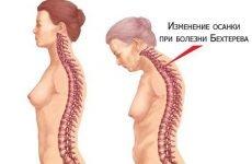 Виліковна хвороба бехтерева: ліки, харчування, гімнастика