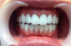 Як відбувається протезування передніх зубів?