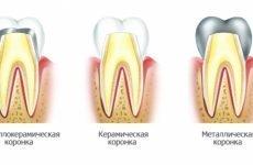 Як проходить протезування зубів коронками?