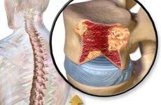 Як розпізнати рак хребта на ранніх симптомів