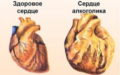 Як впливає алкоголь на роботу серця — біль і тяжкість в області серця, прискорене серцебиття після прийому алкоголю