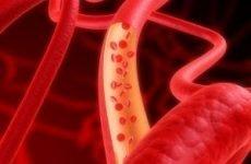 Як впливає алкоголь на серце і судини (звужує або розширює) – що відбувається з судинами при постійному вживанні спиртного