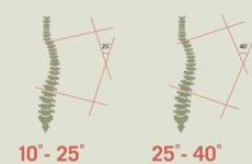 Кіфосколіоз хребта: причини, симптоми і лікування