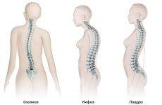 Кіфоз поперекового відділу хребта: симптоми і лікування