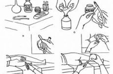 Клізма в домашніх умовах самому собі грушею або з допомогою кружки Есмарха