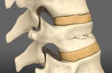 Компресійний перелом хребта що це таке і як це лікувати?