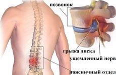 Лікування грижі хребта без операції народними засобами