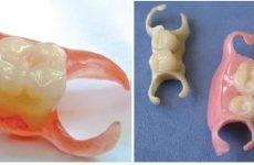 Чи можна встановити знімний протез на один зуб?