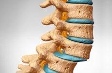 Нестабільність хребта: причини і методи лікування